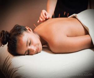Aplicación de acupuntura en la espalda
